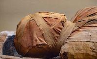 Следы описанного в папирусах лечения обнаружены у египетской мумии